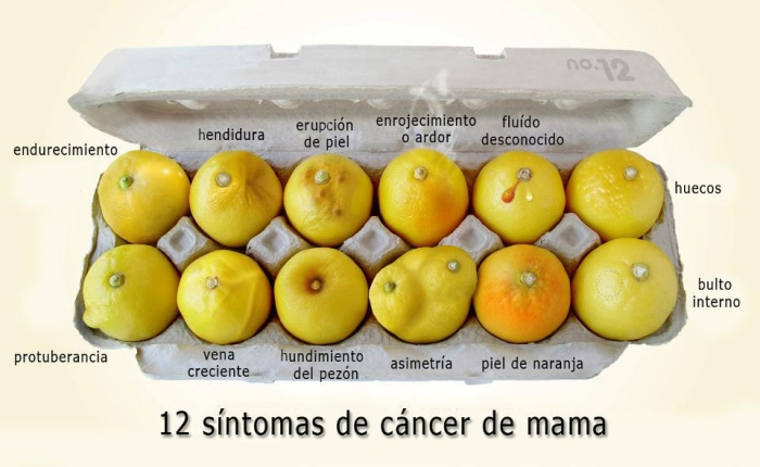 cancer de mama , limones , womenonmovement