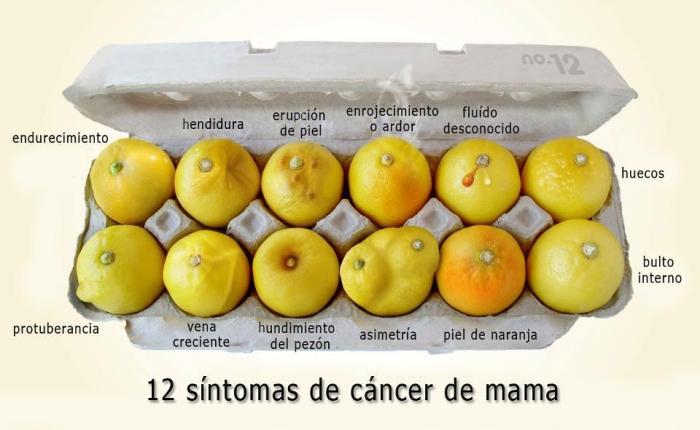 cancer de mama , limones , womenonmovement